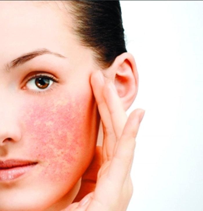早春過敏季 三招打響皮膚保衛戰